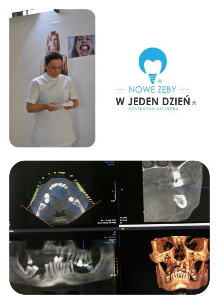 planowanie leczenia metodą Nowe Zęby w Jeden Dzień