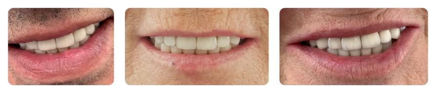 uśmiechy pacjentów z mostami natychmiastowymi