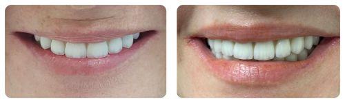 Usmiech po leczeniu implantologicznym